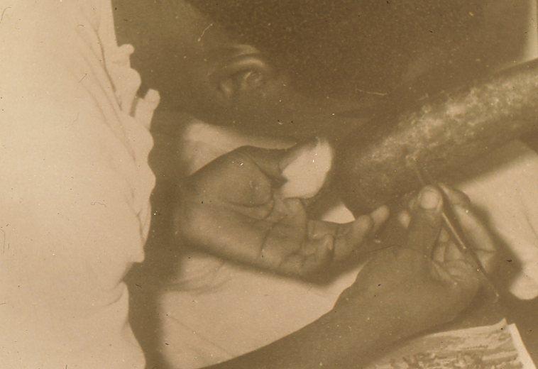 Papa Louis l'infirmier soigne le bras de Robert