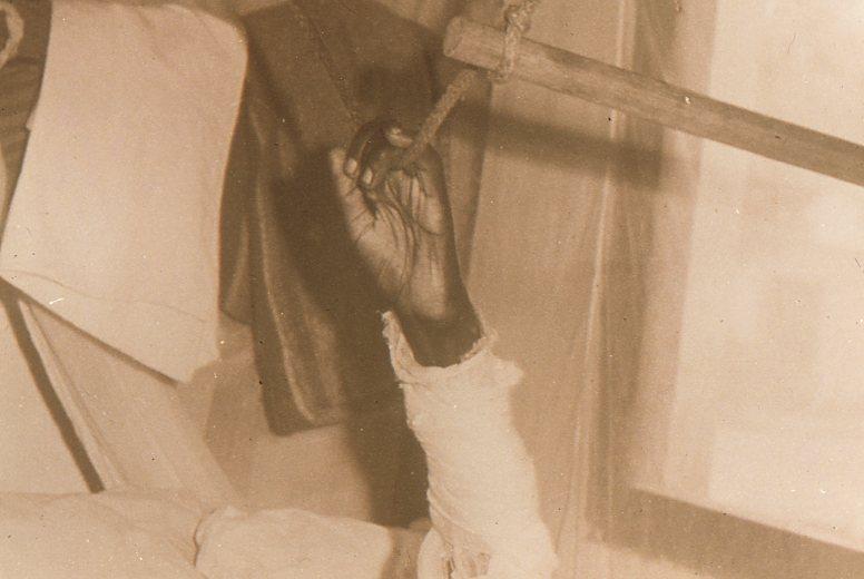 Sa main s'accroche pour supporter la douleur du curatif